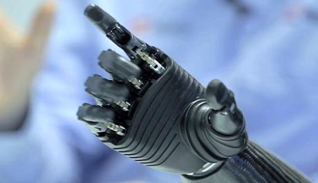 FOTO: Bionická ruka